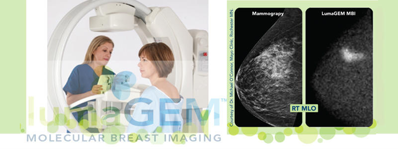 molecular breast imaging from doctors at toledo radiological associates